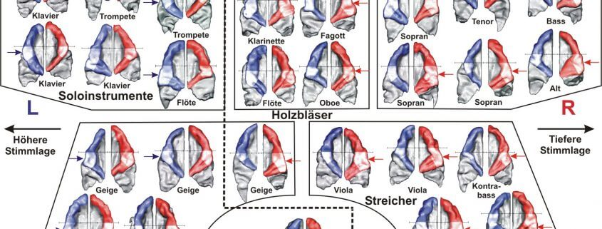 Overtone and fundamental listeners in the orchestra (c) Neurological University Hospital Heidelberg